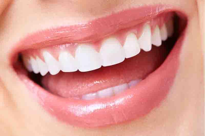 Cara Memutihkan Gigi Gigi Putih 1